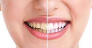 teeth-whitening-manchester