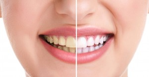teeth-whitening-manchester
